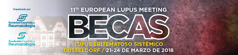 becas_lupus